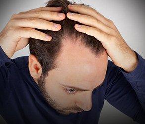 zabiegi na wypadanie włosów kielce